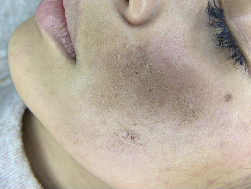 Le queman la cara en clínica dermatológica